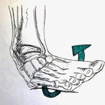 turning your ankle